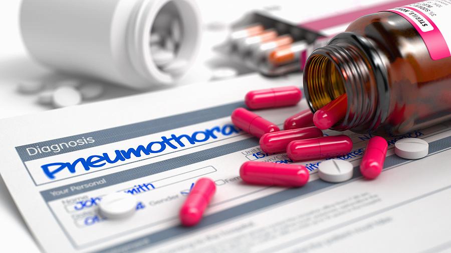El neumotórax tratado de forma ambulatoria acorta la hospitalización